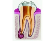 root canal
