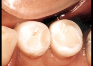 White fillings 6