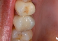 White fillings 4