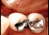 White fillings 5