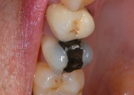 White fillings 3