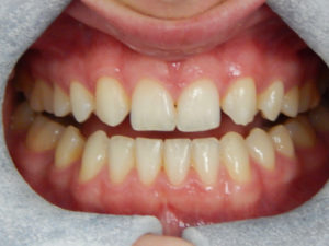 Cosmetic Dentistry 1