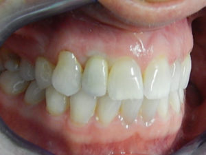 Implants 2