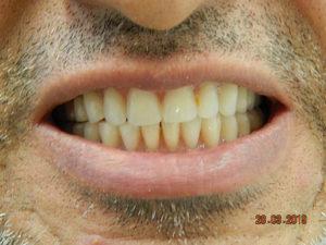 Implants 6