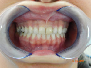 Cosmetic Dentistry 7
