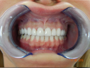 Cosmetic Dentistry 8