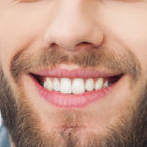 Cosmetic Dentist - Liverpool & Southport - Puredental 8