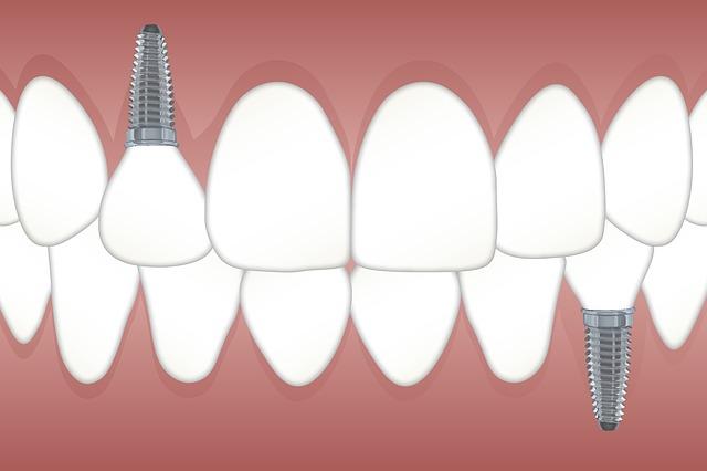 dental implants image