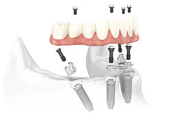 all-on-4 dental implants Liverpool & Southport